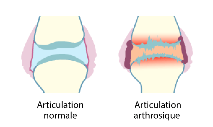 arthrose-articulation