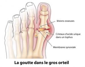 goutte-orteil