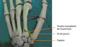 Distraction de la base du pouce avec un tendon [1]