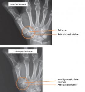 Résultat de la distraction de la base du pouce avec un tendon [1]