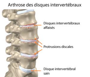 Arthrose-disques-intervertébraux
