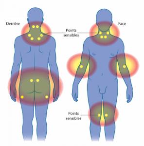 Voici les 18 points sensibles en cas de fibromyalgie. Cliquez sur l'image pour l'agrandir.