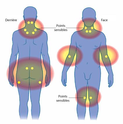Bien-aimé Fibromyalgie : diagnostic, et traitements | Bouger sans douleur YM03