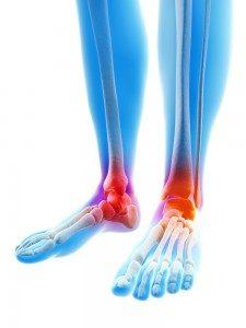 arthrose des pieds traitement