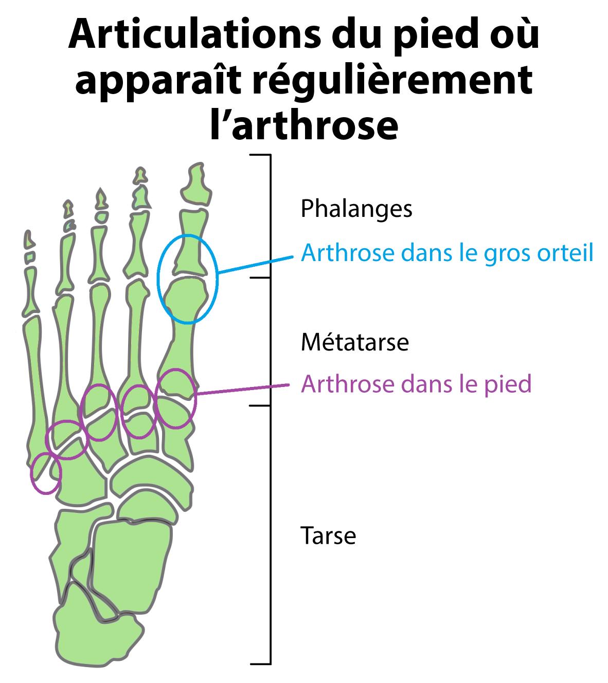 Arthrose des mains et des pieds