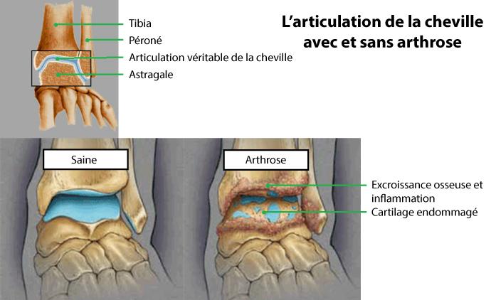arthrose des pieds symptomes