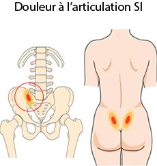 Articulation sacro-iliaque | Douleur, Mouvement, Traitement ...